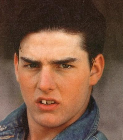 Tom Cruise's teeth before cosmetic dental surgery : pics