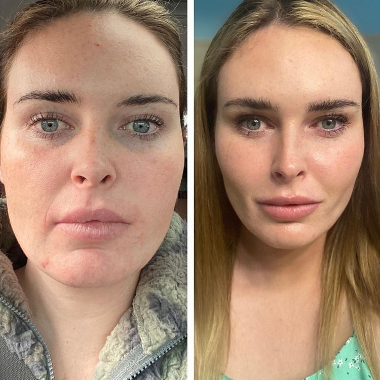 20-people-who-decided-on-plastic-surgery-and-now-are-difficult-to-recognize-after-surgery